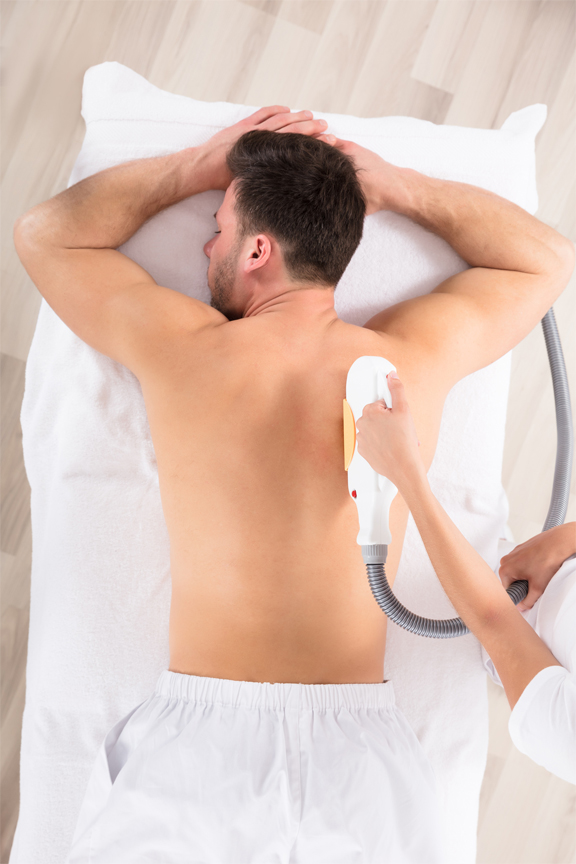 Laser Hair Removal Toronto Men