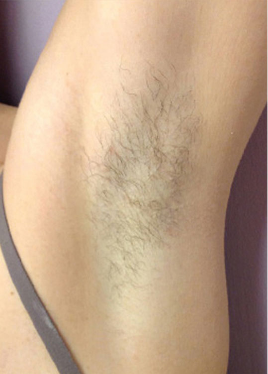 Under Arm Laser Hair Removal for Ment