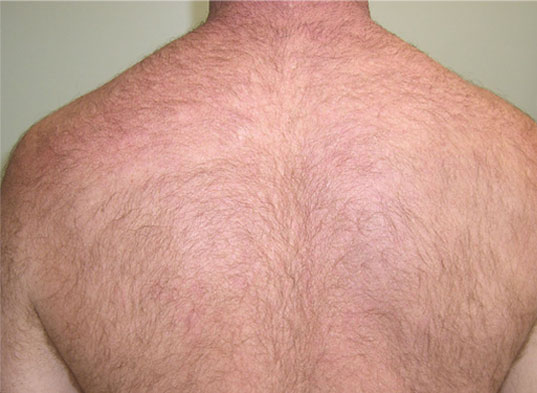 Shoulder Laser Hair Removal